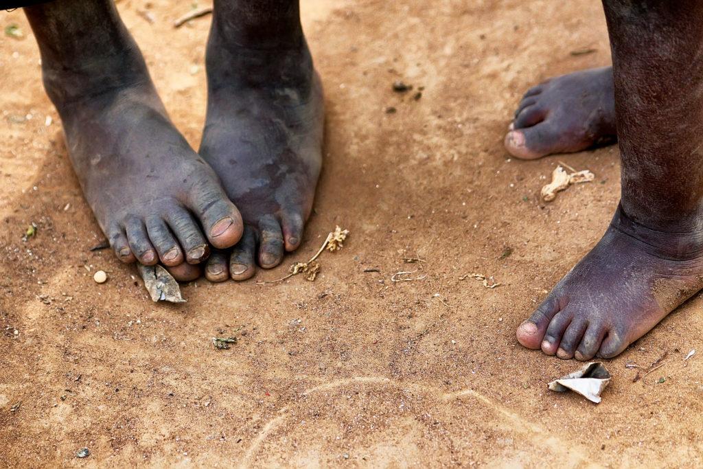 Feet of african children